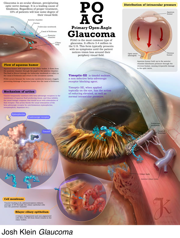 How Viagra Affects Glaucoma