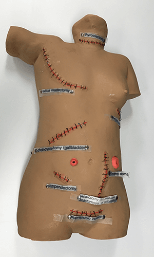 Surgical Sally Wound Care Torso