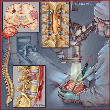 Neurosurgery graphic