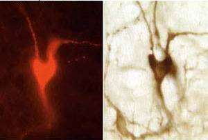 Heart Shaped Brain Cell - Dr. Ann Schreihofer Research Image
