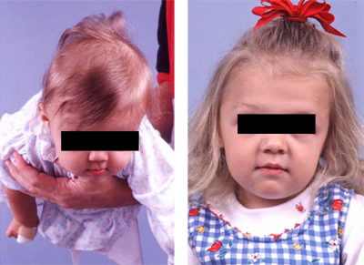 Plagiocephaly before and after